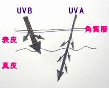 UVAB.jpg