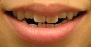 smilemouth1.jpg