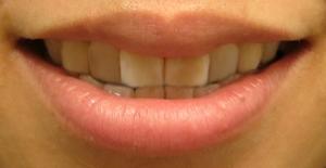 smilemouth2.jpg