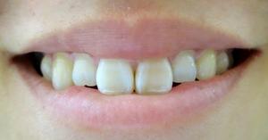 smilemouth4.jpg